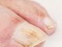Mycose de l'ongle de l'orteil : pourquoi faut-il la traiter rapidement ?