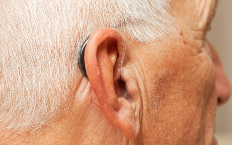 appareil-auditif-contour