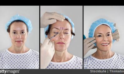 Chirurgie esthétique : zoom sur les techniques anti-vieillissement
